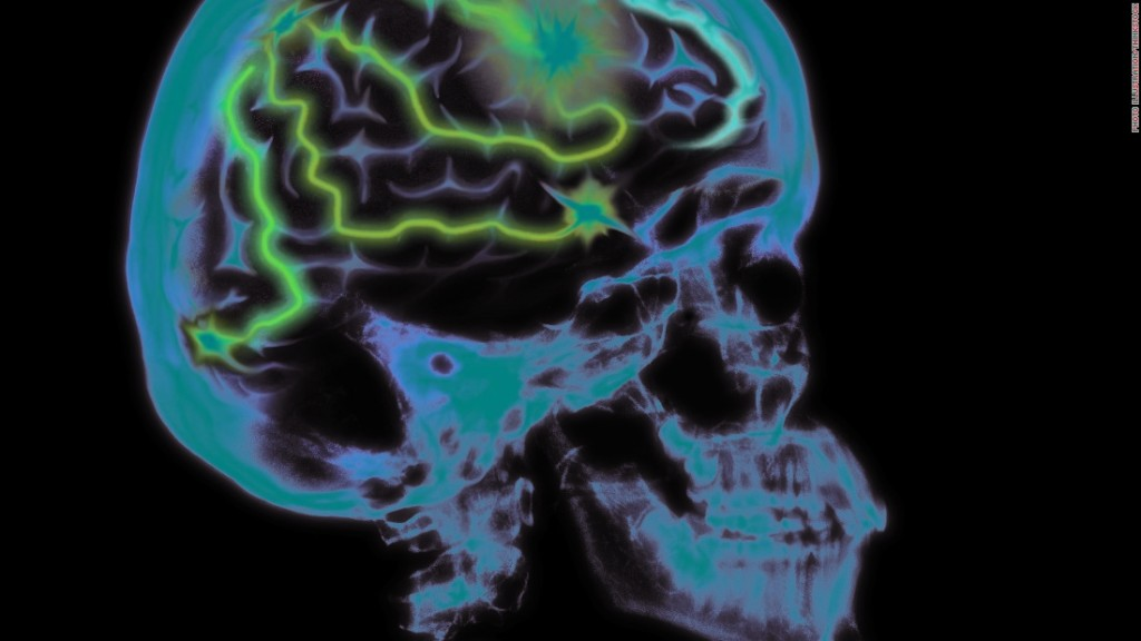 Stress might lead to memory loss and brain shrinkage, study says