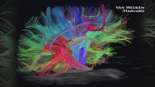 New brain map identifies 97 previously unknown regions