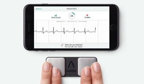 Tiny attachment gives iPhone better ECG than Apple Watch