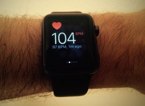 Apple Watch heart monitor saves teen's life
