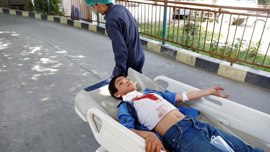 إصابة العشرات في انفجار ضخم بالعاصمة الأفغانية