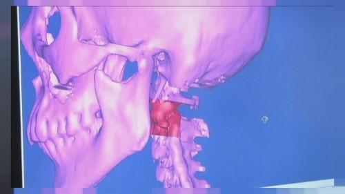 Halswirbel aus 3D-Drucker implantiert