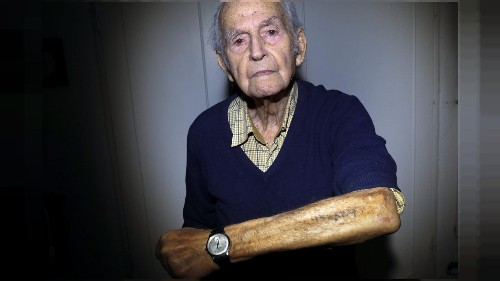 A reminder of lifelong suffering: Auschwitz survivors show identifying tattoos