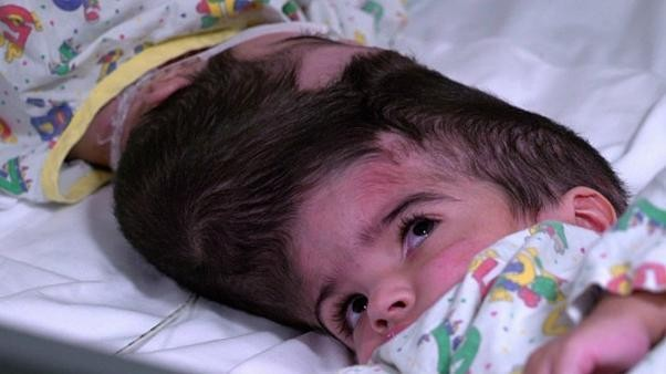 Rare conjoined twins successfully separated in London