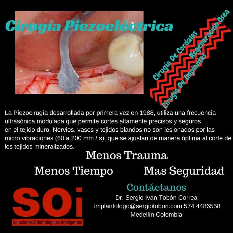 Cirugía Piezoeléctrica - Cover