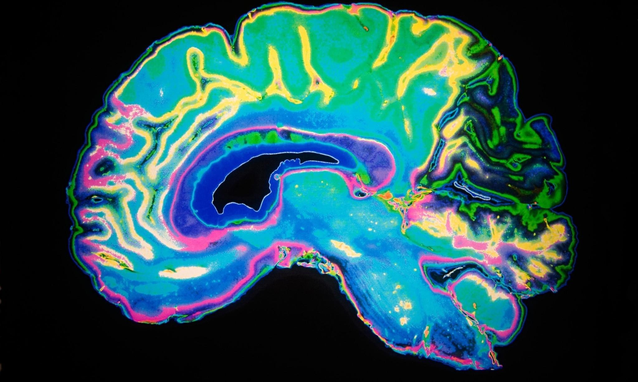 Dementia hits women hardest – study