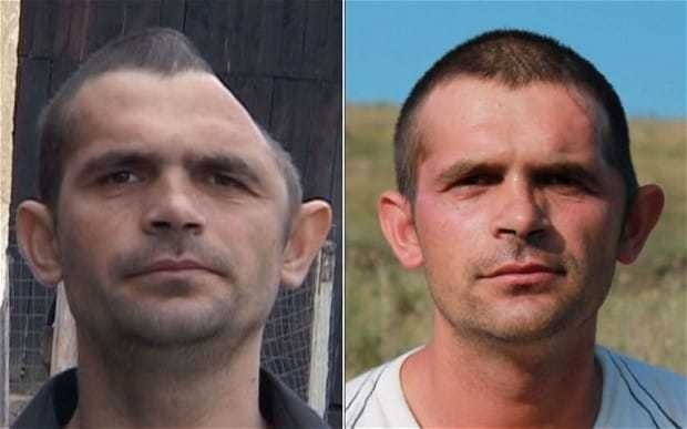 Builder has crushed skull rebuilt thanks to donations from public