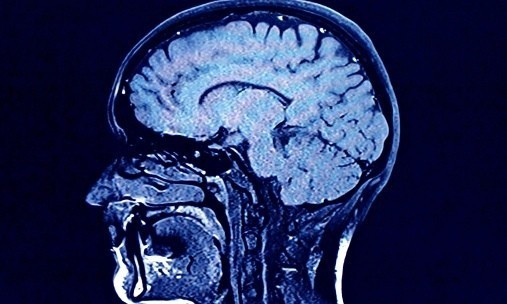 Brain age tests to be offered to middle-aged in battle against dementia