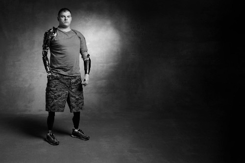 After a Roadside Bomb Cost Him His Limbs, This Veteran Runs On