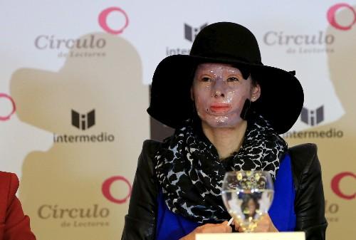 ENTREVISTA-Sobreviviente colombiana de ataque con ácido pide más ayuda para otras víctimas