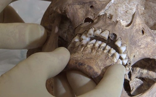 King Richard III: scientists pinpoint fatal blow to skull