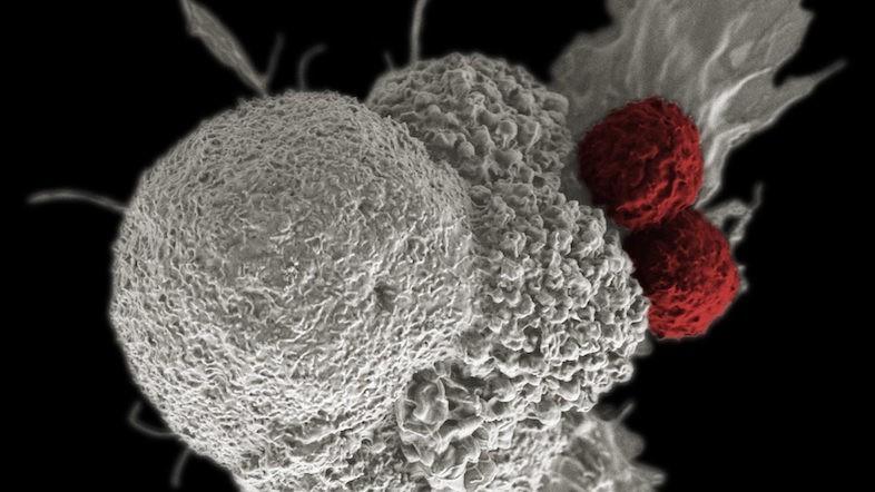放射線も化学療法も不要なガン治療。遺伝子操作したサルモネラ菌を注入する免疫療法に光