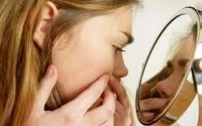 Acne sufferers live longer, research suggests