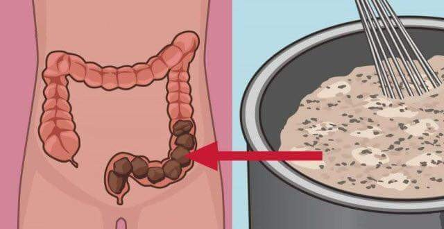 Clean your colon of all wastes using this homemade tasty remedy! ☀️It's super simple ! Ingredients that you need... 1 apple 1 tablespoon flax 1 tablespoon of chia seeds one tablespoon of honey a glass of water Mix all ingredients together and wait until Chia seeds do not spread. Drink this cleanser (preferably on an empty stomach) and you will soon be rid of toxic waste. Apples contain soluble and insoluble fiber which stimulate bowel movements. Flax seed having fibers, antioxidants, and omega-3 fatty acids promotes intestinal absorption of nutrients, and combat colorectal cancer. Chia there is a fiber, omega-3 fatty acids, vitamins, and nutrients, improves the health of the heart and promotes healthy digestive tract. Honey has antibacterial, antifungal, antiviral and antiseptic properties, and offers protection against colon cancers.