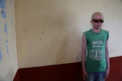 On the run from his own family: Young Burundian albino's escape to safety