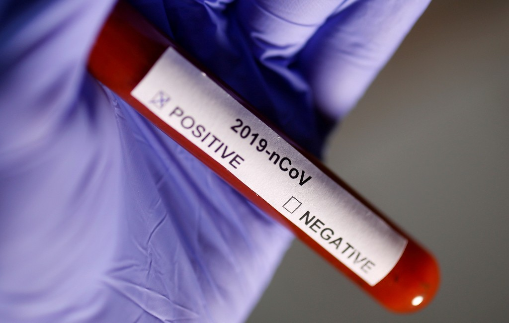COVID-19 strain in Beijing outbreak may have come from SE Asia - Harvard study