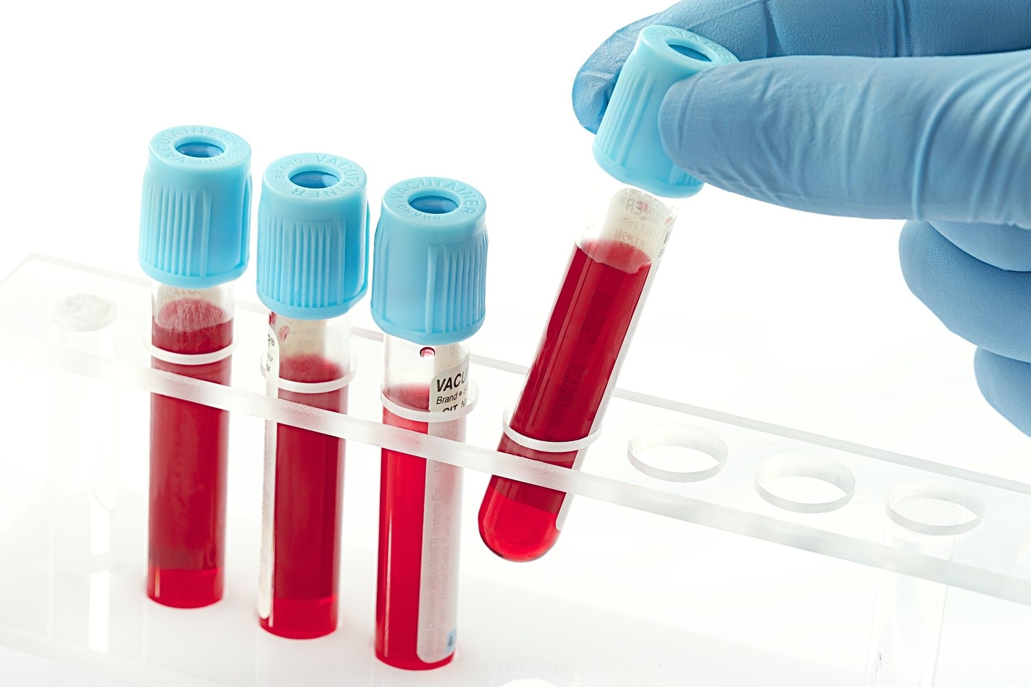 How researchers probe the secrets in our blood