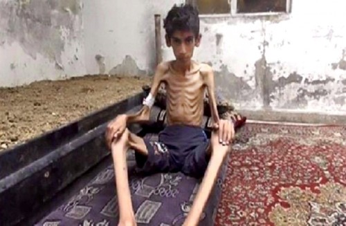 23 starve to death in besieged Syrian town, medical charity says