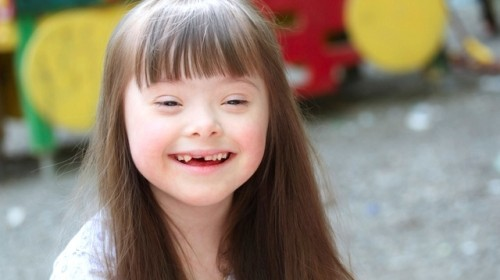 """Down syndrome * Genetic disease In chromosome 21, the most common chromosome abnormality in human, associated with a delay in congnitive ability ( mental retardation), physical growth, and a particular set of face characteristics. The average IQ around 50, There is 2 different hypothesis have been proposed to explain the mechanism of gen action in DS, -Development instability - Gene-dosage effect ----------- Clinical Manifestation: - Growth failure ( mental retardation) - Flat back head and broad face - Slanting eyes - Epicanthic eyefold - Short nose - Abnormal ears - Many """" loops """" in finger - Palm crease - Short and broad hand - Big wrinked tongue - Dental abnormality - Congenital heart disease - Enlarge colon - Intestinal blockage - Abnormal pelvis - Diminution muscle tone - Big toes widely spaced ( feet) ---------------- It could by - Trisomy 21 ( 95% ) - Mosaicism ( 3% ) - Chromosome translocation ( 2% ) ( ether 14/21 , 21/21 , 22/21 ) ( Robertsonian) ( if the father is the carrier the risk is 3% , if the mother the risk is 12% ) 75% is de nova And 25% is familia translocation With maternal age 45 the risk is 1 in 30 ---------------- Testing .... • First trimester Compound test - PAPP-A ..... If it low then the test is positive - Free B-hCG ..... If it high then the test is - Nuchal translucency (NT ) ..... If it high then the test is Screening Detectives rate of 65%, with 5% false But with the Papp-a and hCG is increase to 80% with the same false rate. //////// • Second trimester Quad mark test = - Alpha-fetoprotein (AFP) ... If it low then the test is - Unconjugated estriol ( uE3) ... Low= - hCG - inhapin A .... If it high = Or triple test without inhapin A, ( mother age, wight and ethnicity most censored) The triple test can detect 60% , with 5% false rate. ---------- Test during pragnancy ... If screening is positive = - Amniocentesis ( after week 5 ) - Chronic villus sampling ( between 9th and 14th week ) - Percutaneous umbilical blood sampling ( PUBS ) ( """