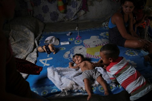 Malnutrition curses the children of Venezuela