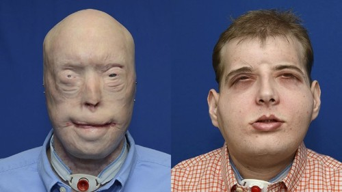 U.S. firefighter gets world's most extensive face transplant