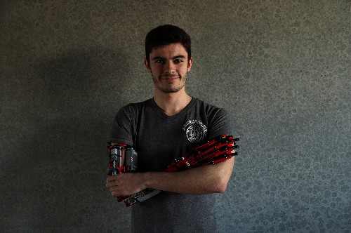 Brick by Lego brick, teen builds his own prosthetic arm