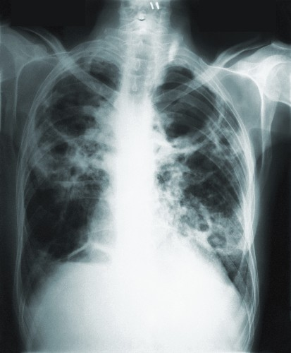 Vaccine shows promise for preventing active TB disease