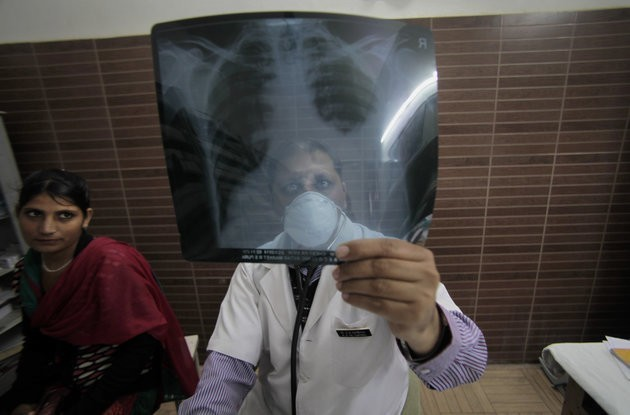 Tuberculosis Causes As Many Global Deaths As HIV/AIDS