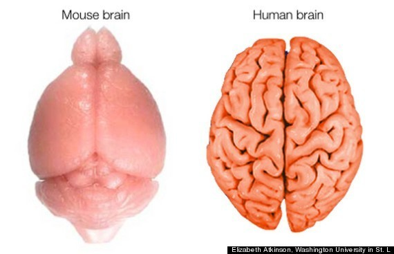 Here's How The Human Brain Gets Its Wrinkles