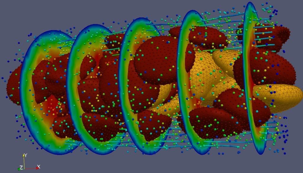 Inside the Inscrutable Physics of a Heart Murmur