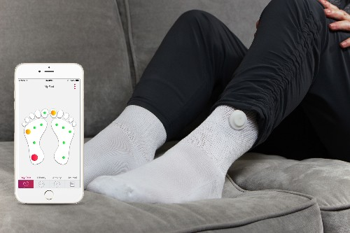 """Siren Care makes a """"smart"""" sock to track diabetic health"""