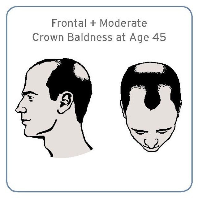A Specific Form Of Baldness Linked To Aggressive Prostate Cancer