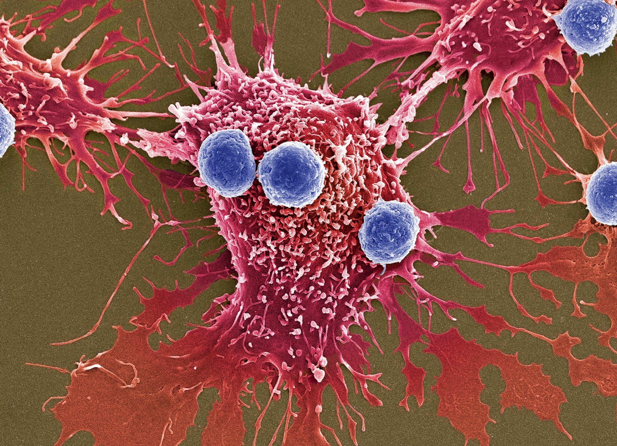FDA Approves First Gene Therapy For Leukemia