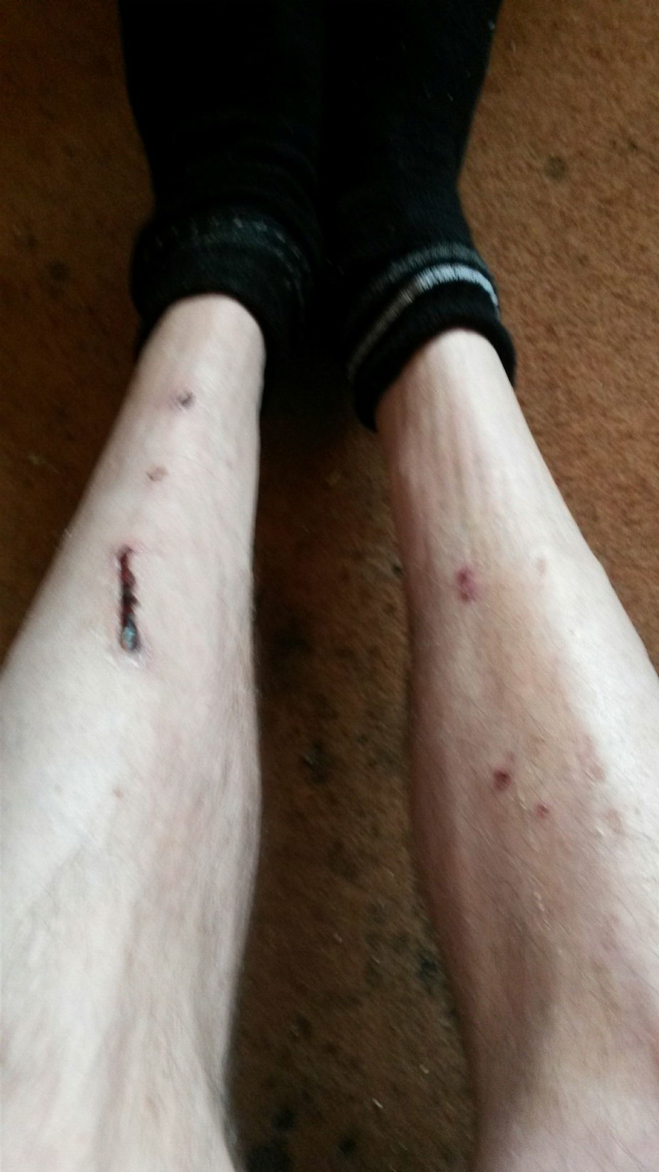 My legs after riding that bloody bike!