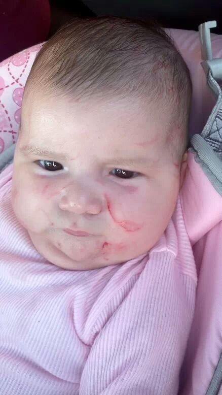 Bebê é agredido em creche, e triste saber que tem gente capaz disso...