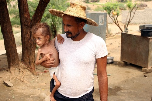 Yemen's war cut a father's route to work, now his toddler starves