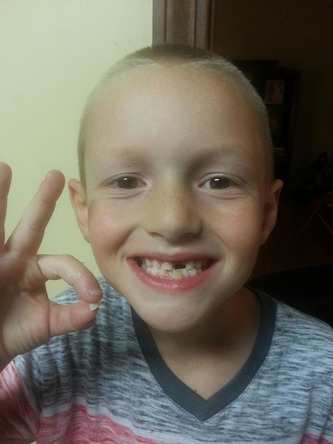 Garin's 3rd tooth lost!