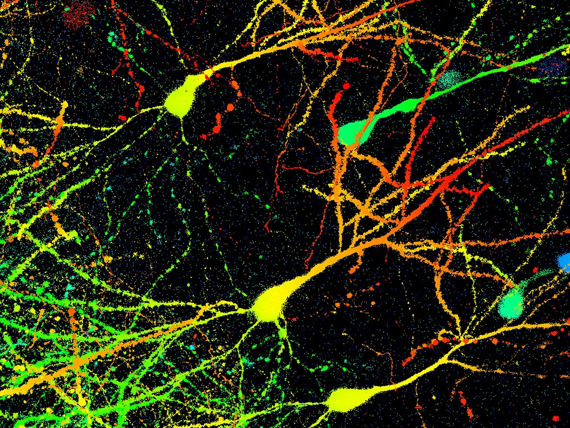 Researchers Discover 'Anxiety Cells' In The Brain
