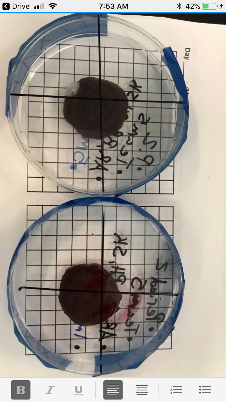 The first lab we ever performed was about mold growth. We used our hands by swabbing unwashed hands and washed hands, then putting the swab on two different beats. Then, we put the beets in containers and let them be. After a few days, there was a decent amount of growth on each beet.