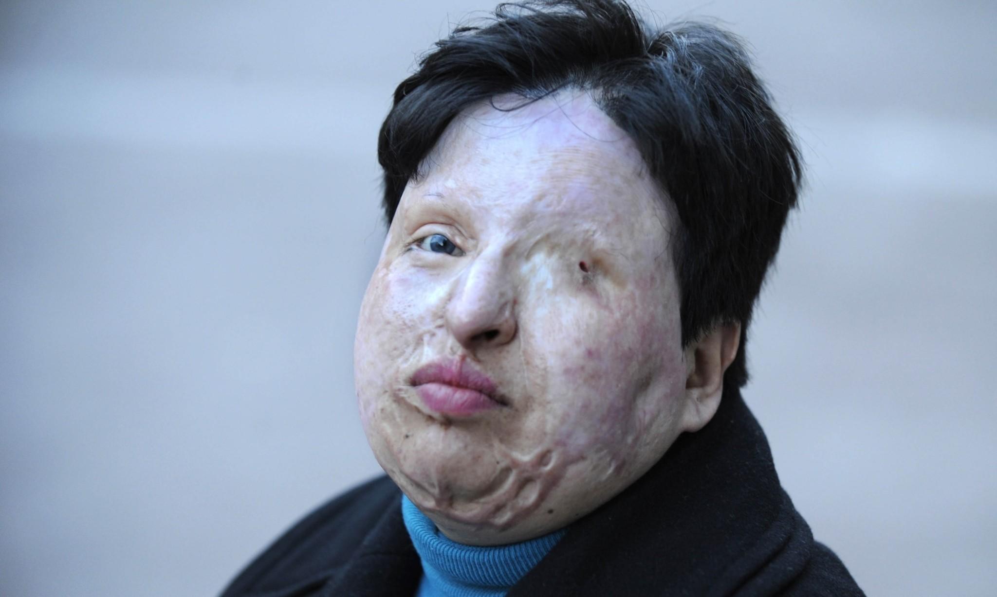 Eye for an eye: Iran blinds acid attacker