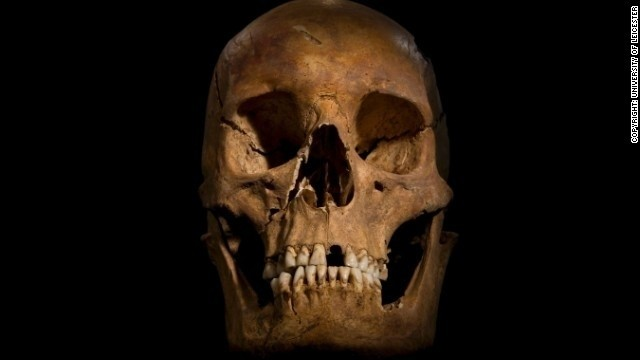 King Richard III's bones reveal fatal blows, scientists say