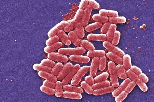 It's Crucial the New Superbug Was in a Urinary Tract Infection – Phenomena: Germination