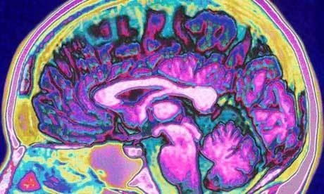Stroke patients show promising signs of recovery after stem cell therapy