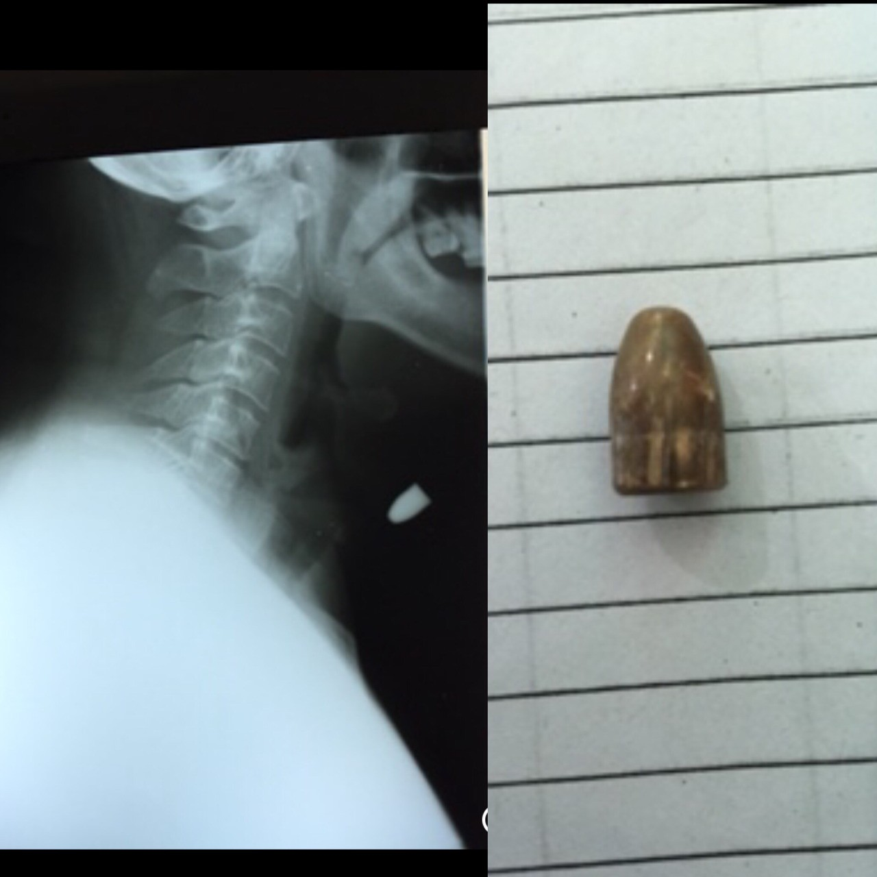 .45 cal FMJ slug anterior to the larynx. Trajectory was from left posterior shoulder to the anterior neck. Bulletin slug was palpable on the skin. My patient lived to tell his story.