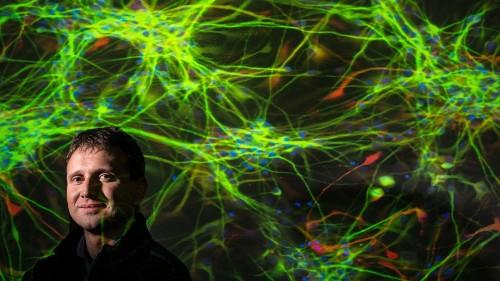 The Coming Boom In Brain Medicines