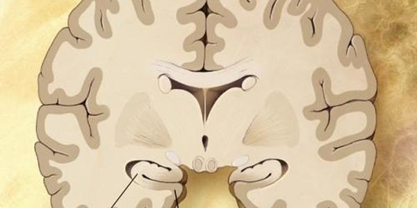 Memory Loss Associated With Alzheimer's May Be Preventable And Reversible