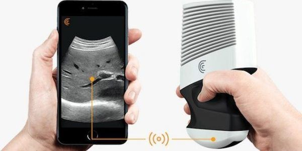 This Mobile Ultrasound Startup Is Reshaping A $6 Billion Healthcare Market