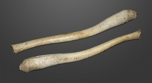 Why Do Chimps Have Penis Bones When Humans Don't?