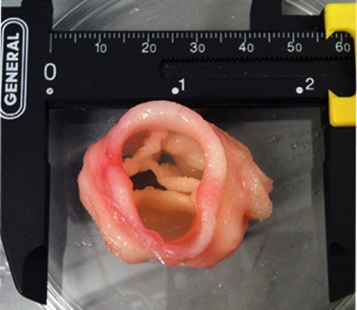 No Donor Required: 5 Body Parts You Can Make With 3-D Printers