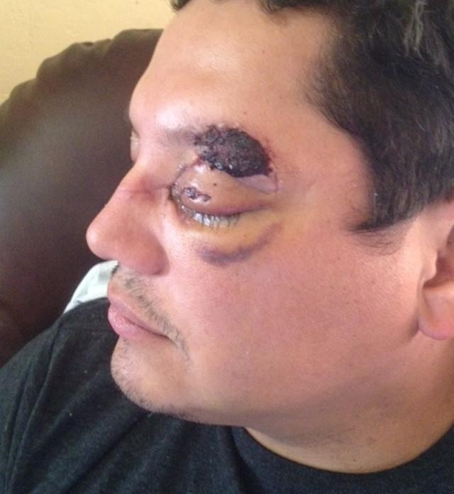 Uber Rider Might Lose An Eye From Driver's Hammer Attack. Could Uber Be Held Liable?